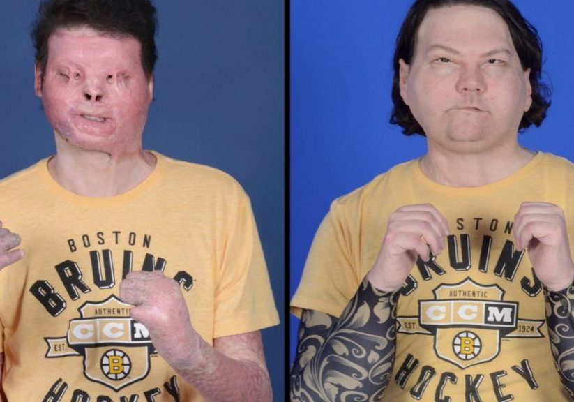 210203160206-joe-dimeo-face-hand-transplant-before-and-after